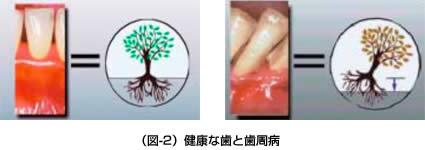 (図-2)健康な歯と歯周病