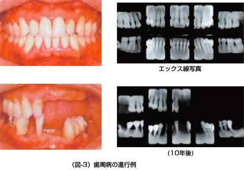 (図-3)歯周病の進行例